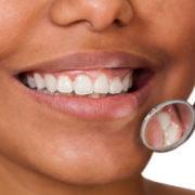Ontstoken tandvleesDordrecht